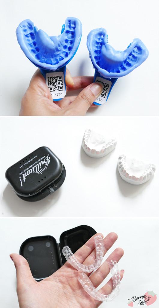 Smile Brilliant Professional Teeth Whitening