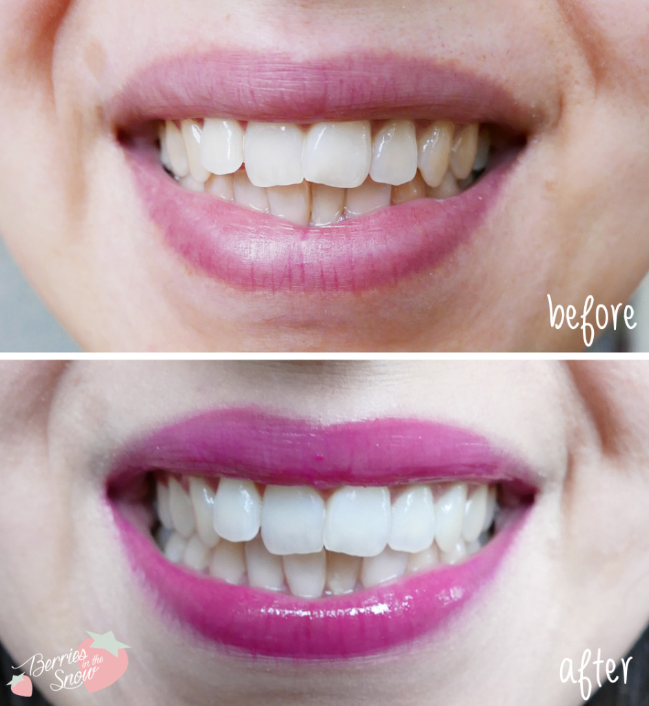 Smile Brilliant Professional Teeth Whitening